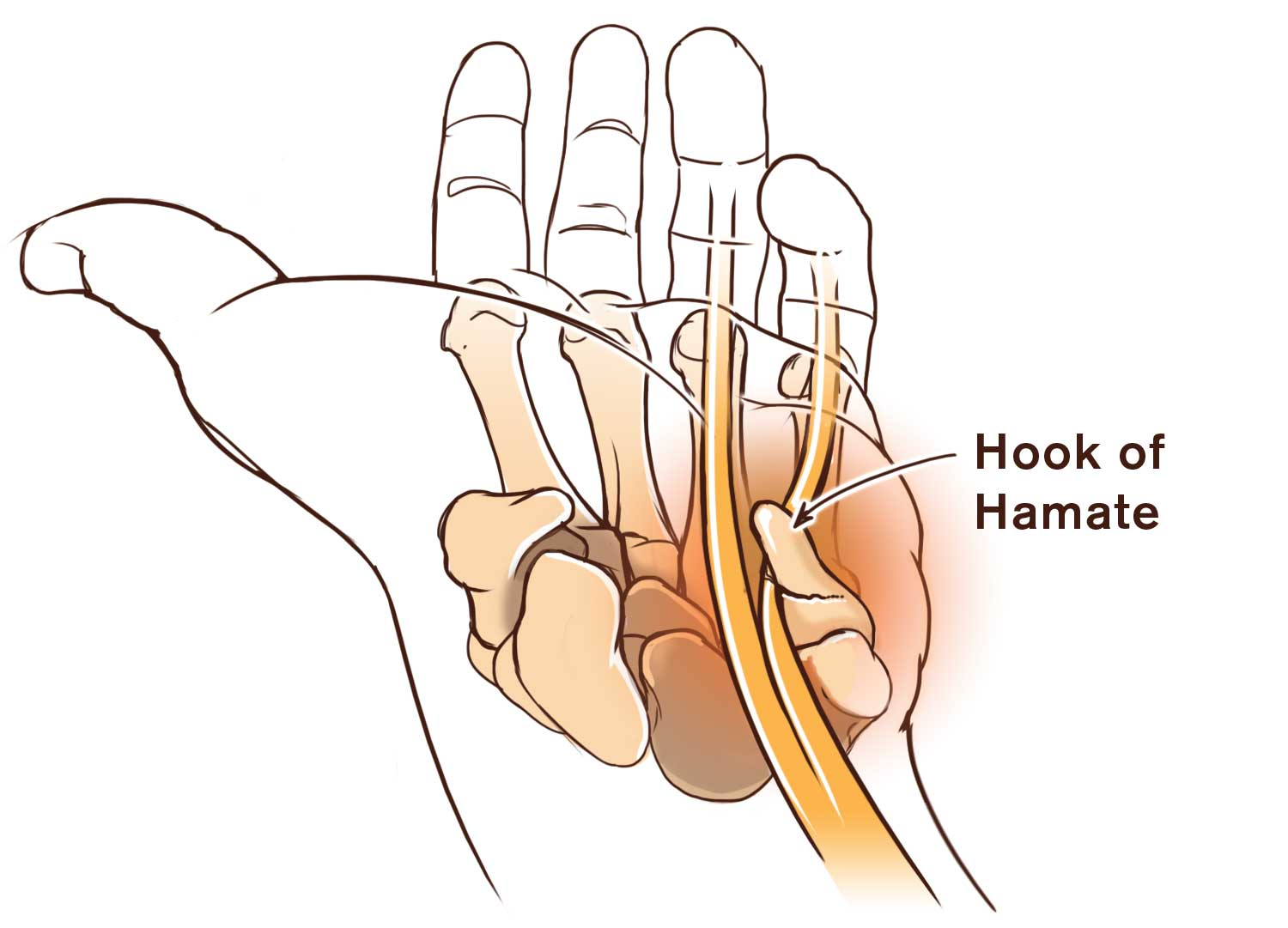 Hand Hook Of The Hamate Fracture Rock And Ice