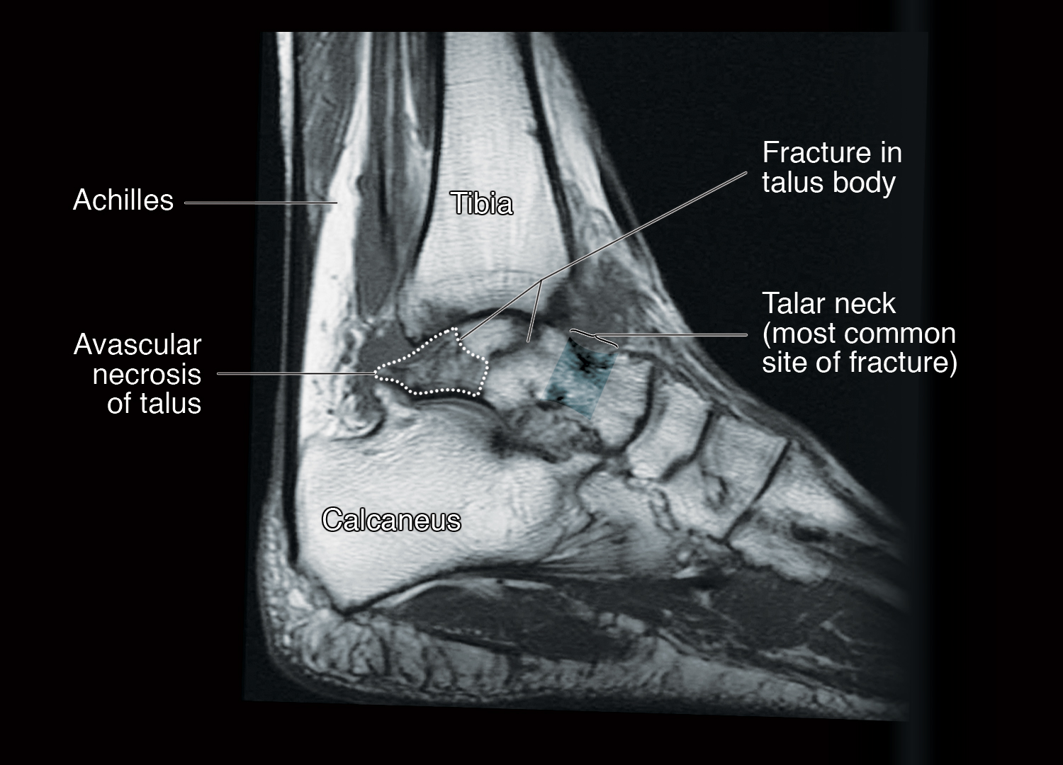 Talus foot. Fracture of the talus of the foot: consequences 8
