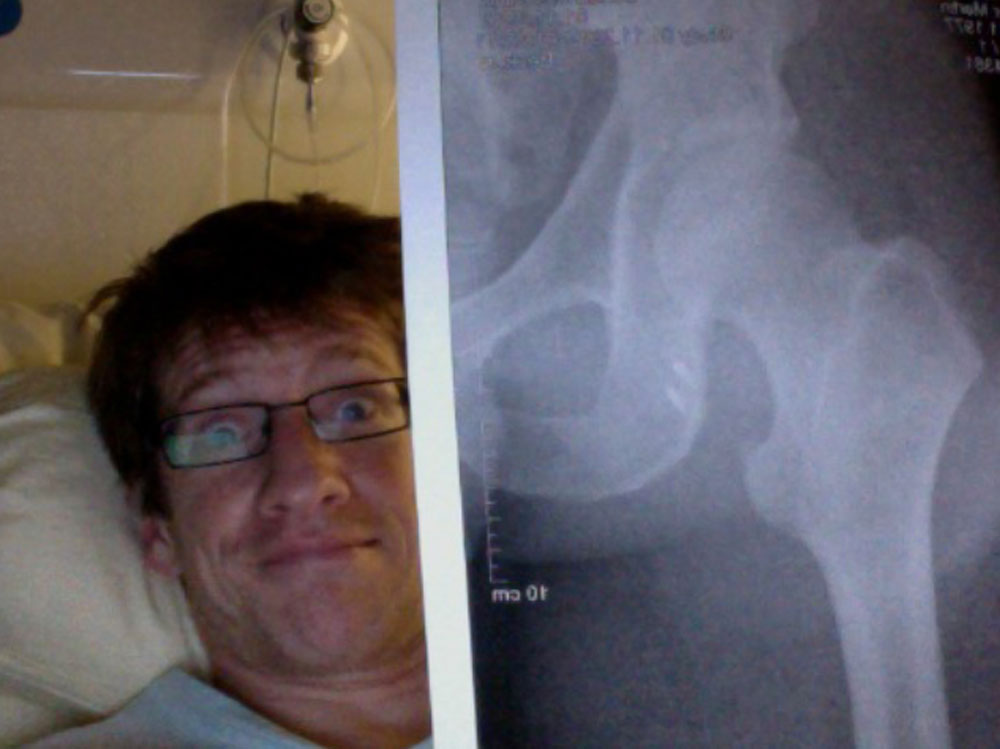 In 2012, X-rays showing two permanent anchors fixing his hamstrings to his hip bones. Photo courtesy of Martin Keller.